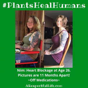 Nim N._ Heart Blockage at Age 26.Pictures are 11 Months Apart! ~Off Medications~